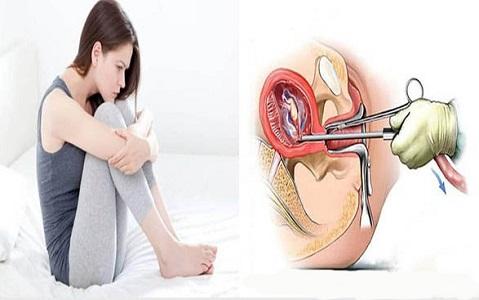 Hút thai an toàn, không đau tại phòng khám đa khoa Thiện Hòa