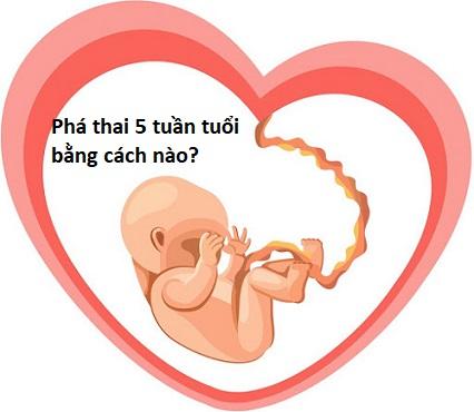 Phá thai 5 tuần an toàn bằng cách nào?