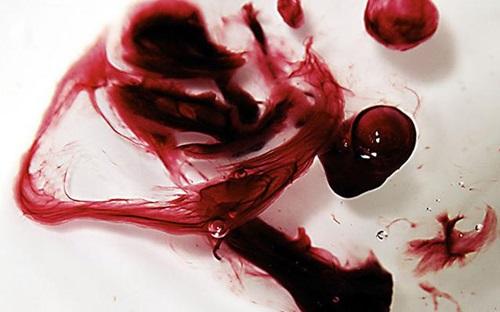uống thuốc phá thai bị ra máu đen