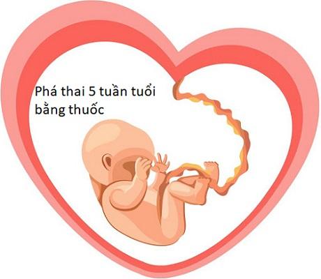 Thuốc phá thai 5 tuần tuổi